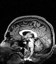 Scan of the human brain